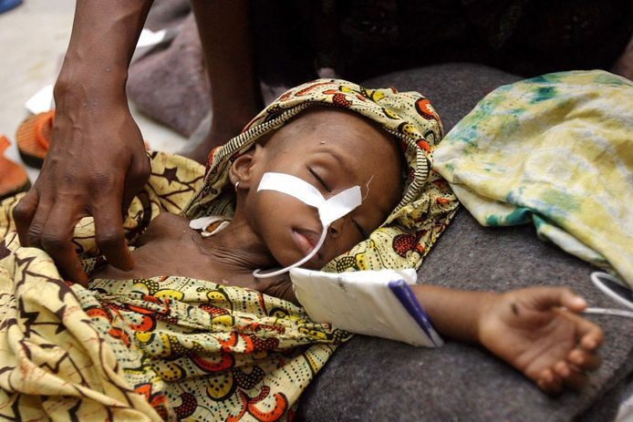 Een meisje in Liberia lijdt aan malaria en ondervoeding