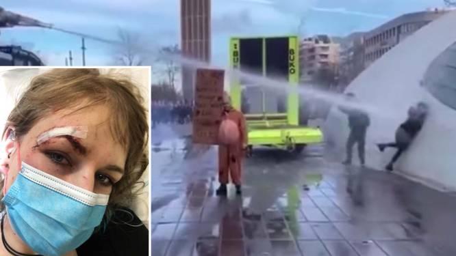 Video toont hoe vrouw van dichtbij vol in gezicht wordt geraakt door waterkanon